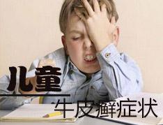 儿童牛皮癣症状是怎样的呢?