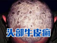 头皮型银屑病症状是什么样的?